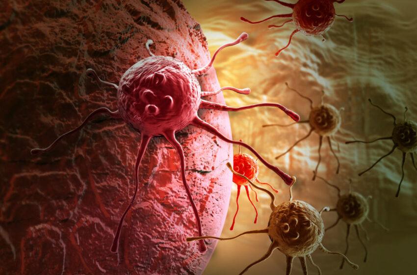 Storosios žarnos vėžys: nuo jo niekas neturėtų mirti